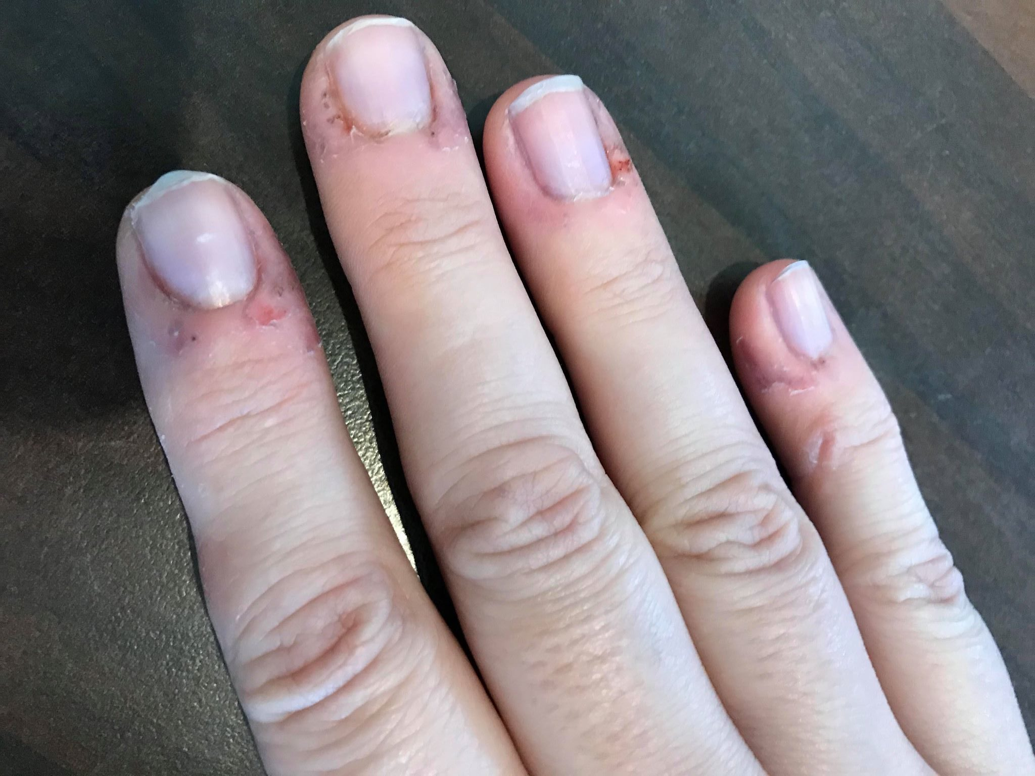 Help! Embarrassed by my nails! Day 4 - Gorgeous Nail